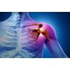 Саркомы кости и мягких тканей